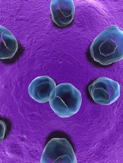 Массовое заболевание хламидии длительно протекающегос по нескольким направлениям.  Метод золотой стандарт, метод...
